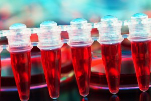 stem cells for treating cancer in a microtube